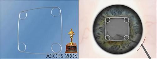 Первое место ASCRS в 2006 году