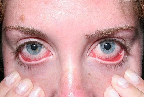 Макулодистрофия сетчатки глаза красноярск