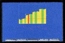 Быстрая диагностика аккомодации Время проверки аккомодации от 49 до 101 секунды (для каждого глаза); Получение простого для понимания трехцветного графика аккомодации; Не требуется подключение к ПК.