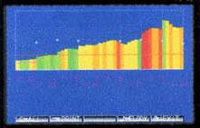 Детальное исследование аккомодации Занимает около 101 секунд (для каждого глаза); Получение восьмицветного графика флюктуаций аккомодации; Возможность экспорта данных на ПК в базу пациентов.
