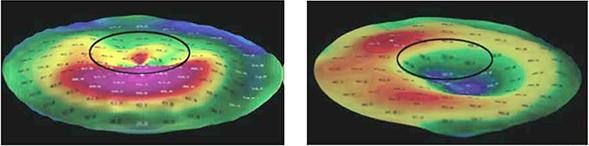 Топография роговицы до и после операции имплантации