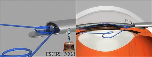 Почетный приз ESCRS в 2008 году